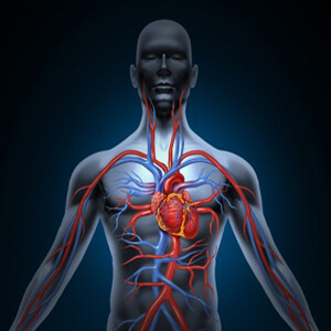 בעיות כלי דם