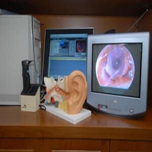 נוזלים באוזניים